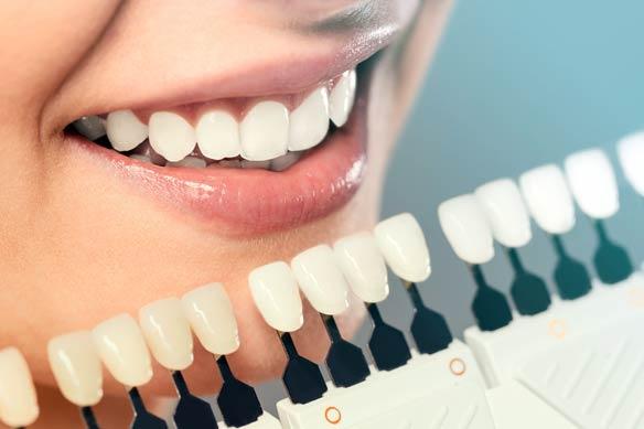 Kỹ thuật niềng răng hiệu quả nhất Đà Nẵng, Nha Khoa ở Đà Nẵng uy tín