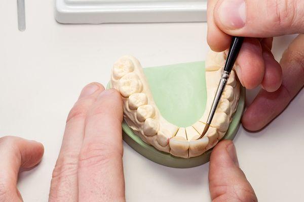 niềng răng trọn gói giá rẻ